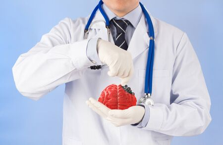 doctor treat 3D brain , concept brain disease