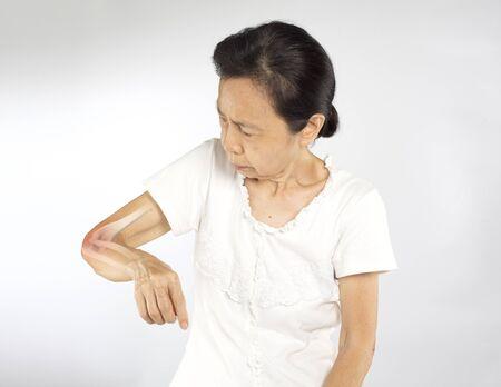 old asian woman feel elbow bones injury Stock fotó
