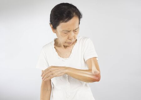old asian woman feel elbow bones injury Stock fotó - 138156490