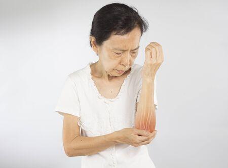 old asian woman feel elbow bones injury Stock fotó - 138285756
