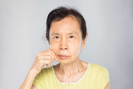old asian woman pulls her cheek, showing her flabby skin