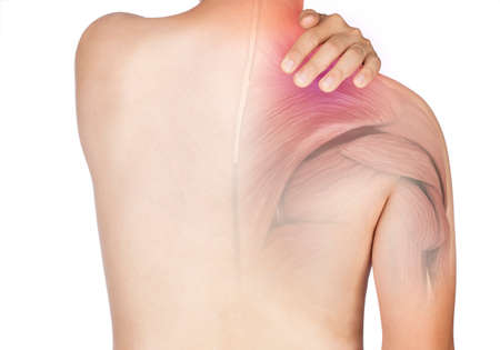 shoulder muscle pain white background shoulder injury Stock fotó