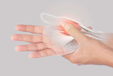 x-ray muscle hand pain from office syndrome