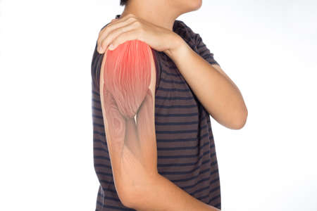 x-ray shoulder muscle pain , upper arm muscles injury Stok Fotoğraf