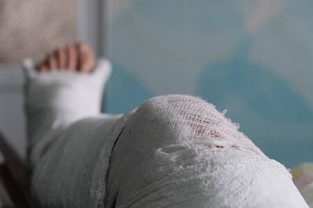 Young man with broken plaster leg trying to scratch injured itching places Stock Photo
