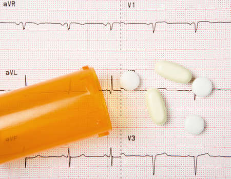 A close up of an electrocardiogram, or EKG, with heart pills and a pill bottle. photo