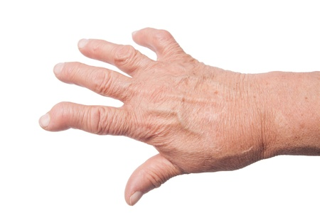 Hand Of old Woman Deformed From Rheumatoid Arthritis photo
