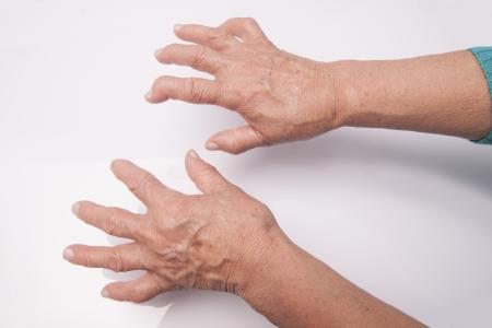 artrosis: Manos de la mujer deformada por la artritis reumatoide