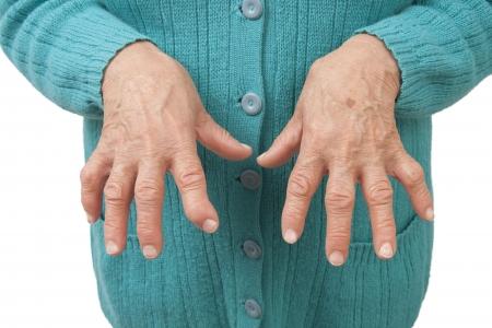 artrite: L'artrite reumatoide delle dita isolato su sfondo bianco