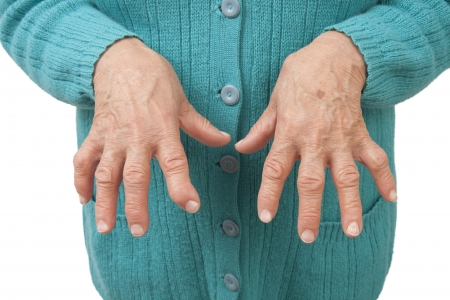 Rheumatoid arthritis of the fingers isolated on white background photo