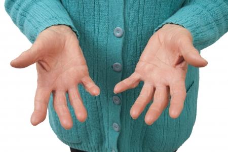 deformity: Rheumatoid arthritis of the fingers isolated on white background Stock Photo