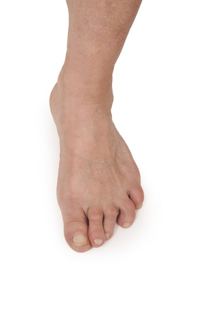 foots: Old Woman s Foots Deformed From Rheumatoid Arthritis Stock Photo