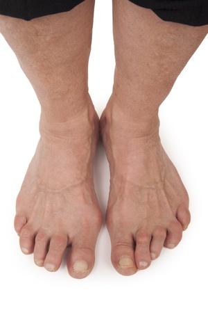 rheumatoid: Old Woman s Foots Deformed From Rheumatoid Arthritis Stock Photo