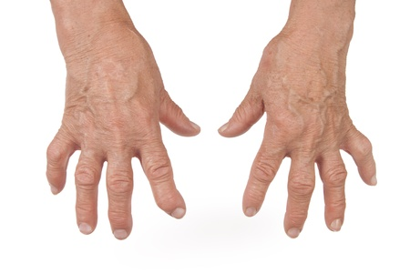 rheumatoid: Old Woman s Hand Deformed From Rheumatoid Arthritis Stock Photo