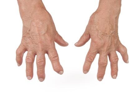 artrite: Vecchia Donna s mano deforme Da artrite reumatoide Archivio Fotografico