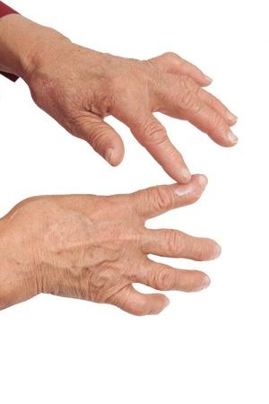 restricting: Rheumatoid arthritis of the fingers isolated on white background. Using medical cream