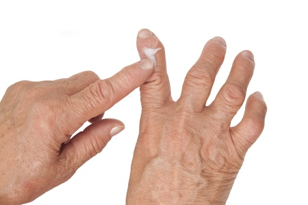 Rheumatoid arthritis of the fingers isolated on white background. Using medical cream