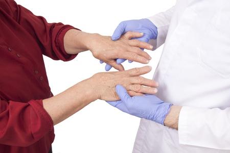 deformity: Senior woman with Rheumatoid arthritis visit a doctor Isolated on white Stock Photo