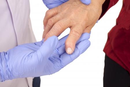 restricting: Senior woman with Rheumatoid arthritis visit a doctor Isolated on white Stock Photo