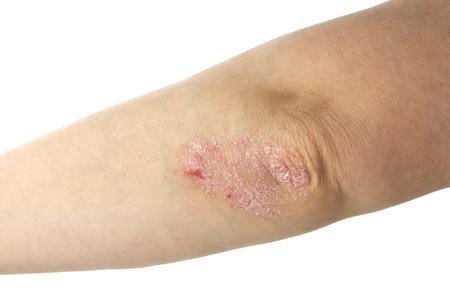 psoriasis: Psoriasis on elbows  Isolated on white Stock Photo