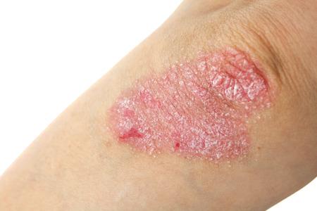 dermatologo: La psoriasi sui gomiti isolato su bianco