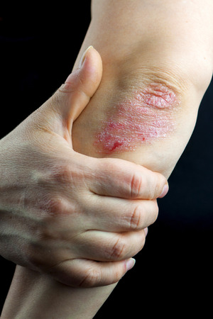 psoriasis: Psoriasis on elbow isolated on Black background