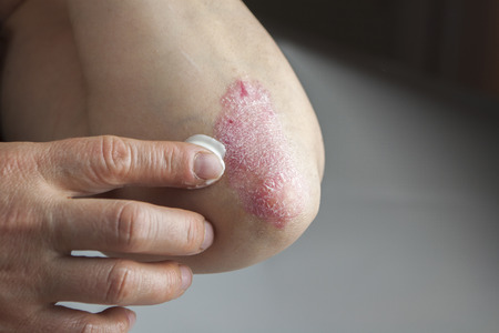 psoriasis: Psoriasis on elbow