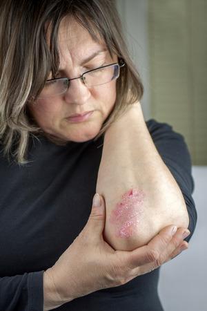 codo: Mujer con psoriasis Foto de archivo