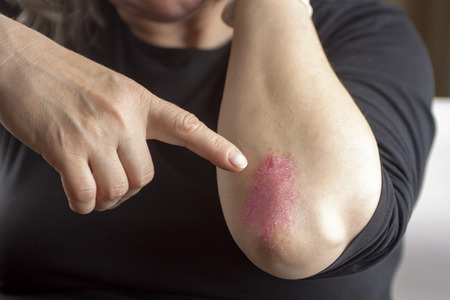 elbows: Finger pointing to Psoriasis on elbow