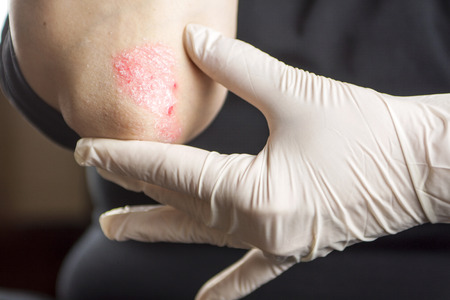 psoriasis: Psoriasis on elbow