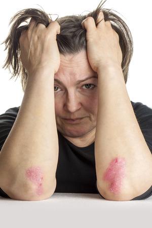 codo: Mujer con problema de la piel psoriasis