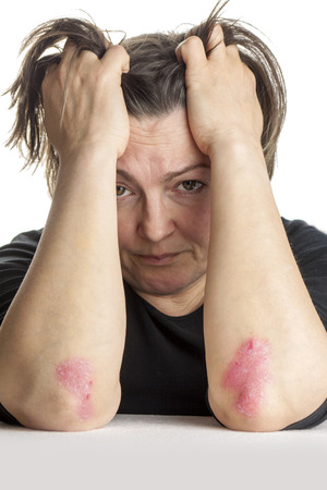 psoriasis: Woman with psoriasis skin Problem Stock Photo
