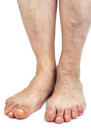 Varicose veins Isolated on white background