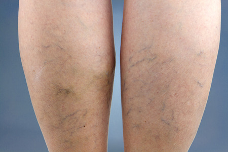 spiders: Varicose veins. Macro. Stock Photo