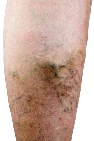 lower limb: Varicose vein