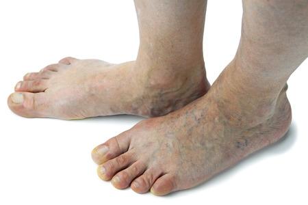 Varicose veins. Isolated on white background