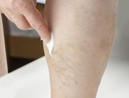 Varicose vain Treatment