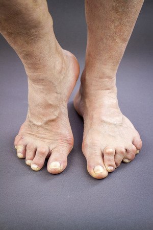 Feet Of Woman Deformed From Rheumatoid Arthritis. Holding pill Stock Photo