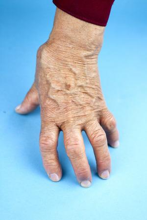 rheumatoid: Hands Of Woman Deformed From Rheumatoid Arthritis