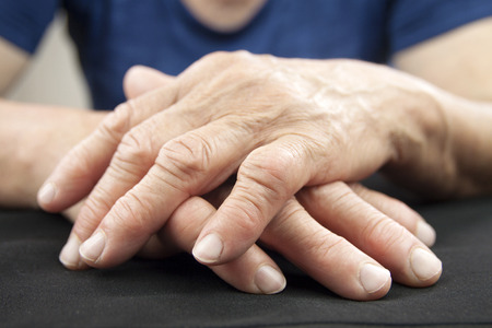 artrite: Mano Di Donna deformarsi con artrite reumatoide Archivio Fotografico