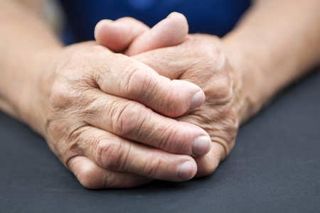 Hands Of Woman Deformed From Rheumatoid Arthritis. Holding pill