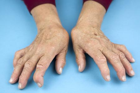 リウマチ性関節炎から変形した女性の手 写真素材