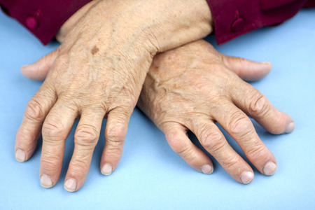 Hands Of Woman Deformed From Rheumatoid Arthritis photo