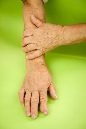 rheumatoid: Hands Of Woman Deformed From Rheumatoid Arthritis.