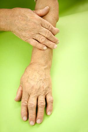 deformity: Hands Of Woman Deformed From Rheumatoid Arthritis.