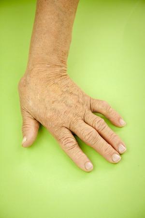 deformity: Hand Of Woman Deformed From Rheumatoid Arthritis.