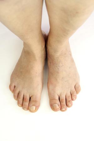 varicose veins: Varicose veins. Isolated on white background