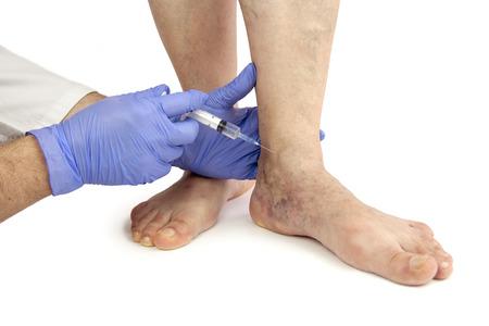 varicose veins: Varicose veins. Medical treatment. Isolated on white background
