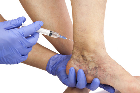 lower limb: Varicose veins. Medical treatment. Isolated on white background