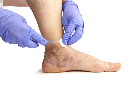 Varicose veins. Medical treatment. Isolated on white background
